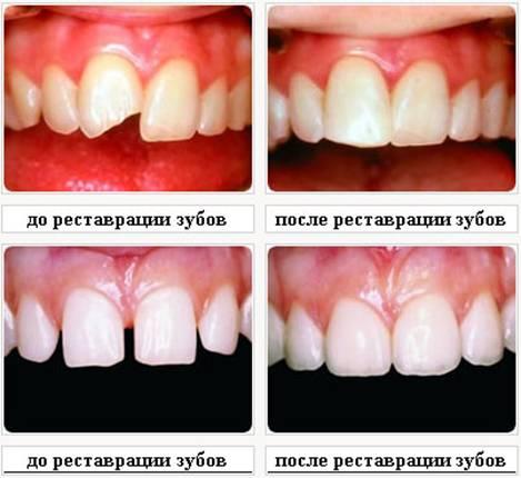 Как можно восстановить зубы в домашних условиях